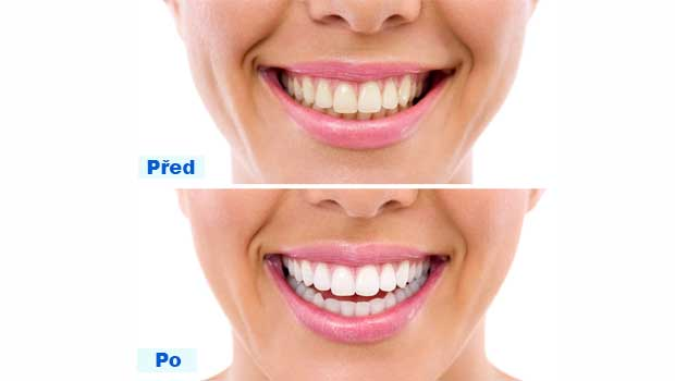Výsledek po domácím bělení zubů