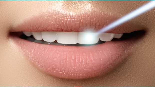 Hezké bílé zuby svépomoci